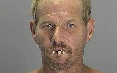 ugly_teeth5.jpg